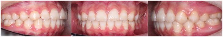 動的治療終了時口腔内写真(拡大図)