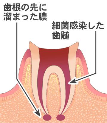 歯根の先に溜まった膿