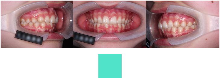術前口腔内写真