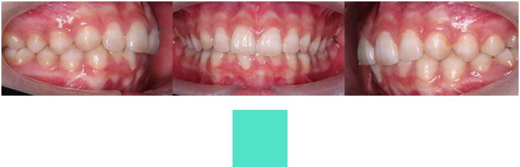 術前口腔内写真(拡大図)